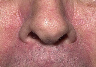 doctor-dermatolog.ro Tratament dermatita seboreica (eczema seboreica)