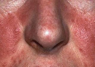 doctor-dermatolog.ro Tratament rozacee / acnee rozacee